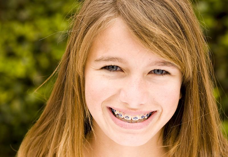 Girl in blue wire braces outside