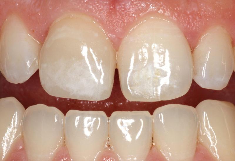 machias_dental_cerec